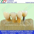 Titanium alloys dental implant teeth