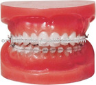 orthodontic product--laboratory model