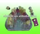 Dental teeth model: dental implant model