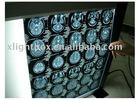 back lit x ray film equipment-brightness adjustable