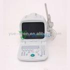 Portable Medical Ultrasonic Scanner YSB0123