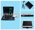 Laptop Ultrasound Scanner