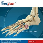 Sell Hand Foot Surgery Restoration Medical Pure Titanium Plate