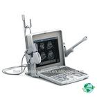 >160G memory disk 256 frames cine loop Digital ultrasound scanner HKB0113