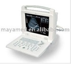 Digital portable B ultrasound scanner