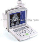 portable USG ultrasound scanner 600B3 with CE approved
