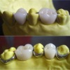 Excellent all -cermiac E-max casting ceramic PFM teeth